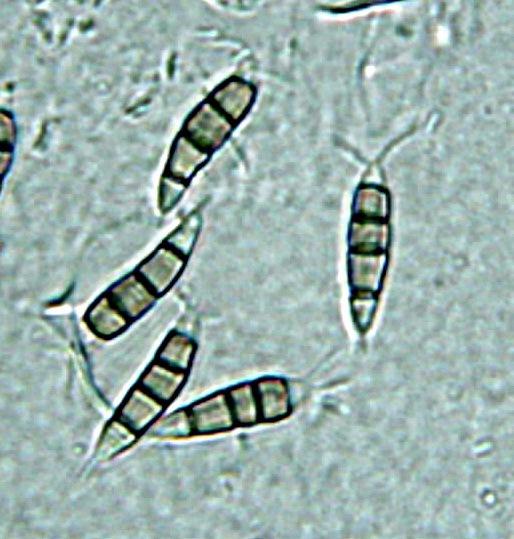 a description of pestalotiopsis microspora Descriptions of 46 species and pestalotiopsis guepinii (desm)  disseminata  and p microspora cause scab in guava in hawaii (keith et al.