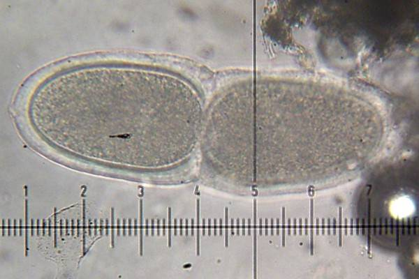 Varicellaria rhodocarpa image