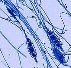 Microsporum canis conidia