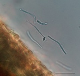 Pseudocercospora kalmiae image