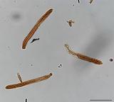 Incrucipulum ciliare image