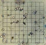 Floccularia albolanaripes image