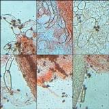 Coprinellus xanthothrix image