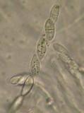 Neonectria fuckeliana image