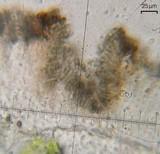 Lichenodiplis lecanorae image