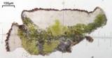 Caloplaca atroflava image