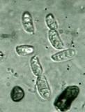 Dacryopinax elegans image