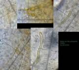 Lepiota lilacea image