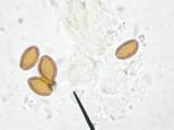 Psilocybe subaeruginascens image