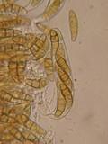 Leptosphaeria eustoma image