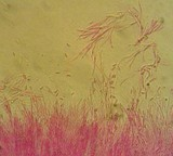 Coryne dubia image