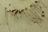 Rhizina undulata image