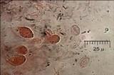 Exidia nigricans image