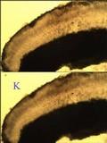 Lecanora albella image