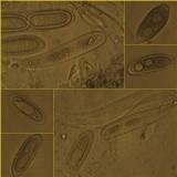 Pertusaria pustulata image
