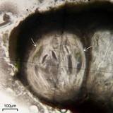 Pertusaria macounii image