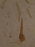 Phellinus chrysoloma image