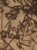 Helminthosphaeria clavariarum image