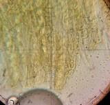 Cheilymenia theleboloides image