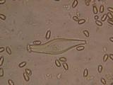 Inocybe leiocephala image