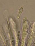 Mycosphaerella lineolata image