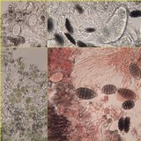 Diploschistes actinostomus image