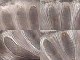 Phlyctis agelaea image
