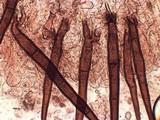 Scutellinia subhirtella image