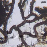 Lichenostigma cosmopolites image