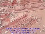 Phycomyces blakesleeanus image