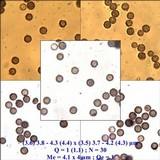 Geastrum triplex image