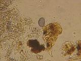 Aleurodiscus farlowii image