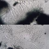 Skyttea pertusariicola image