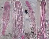 Lecanographa lyncea image