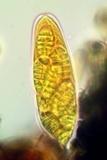 Arthothelium orbilliferum image