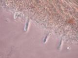 Cotylidia undulata image