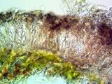 Arthonia cinnabarina image