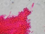Akanthomyces aranearum image