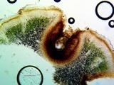 Catapyrenium squamulosum image