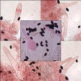 Coprinellus limicola image