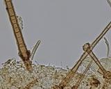 Chaetothiersia vernalis image