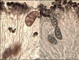 Diplotomma chlorophaeum image