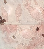 Coprinopsis pannucioides image