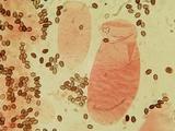 Coprinellus saccharinus image