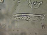 Pezoloma ciliifera image