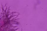 Flagelloscypha minutissima image