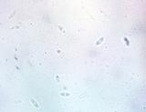 Chlorencoelia torta image
