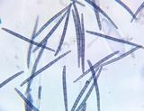Trichoglossum variabile image