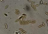 Leccinum subtestaceum image