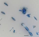 Ascocoryne cylichnium image